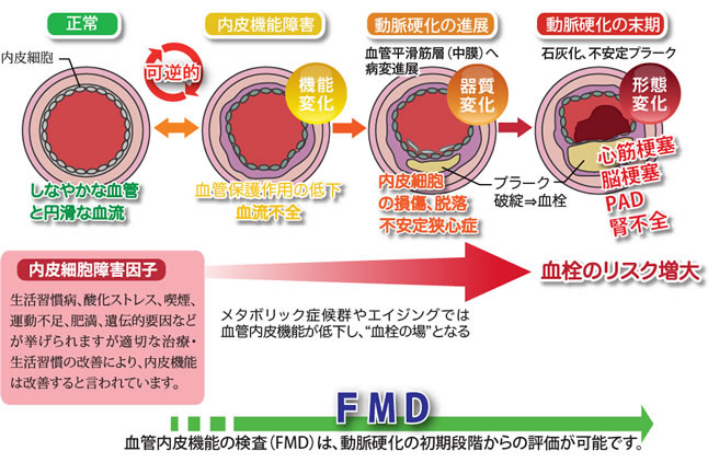 FMD検査(血管皮内機能検査)